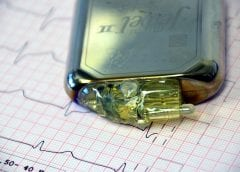 Solar Cells to Power Pacemakers - Image of Pacemaker